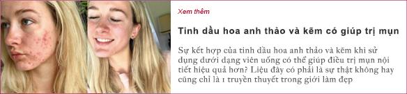 meo-de-kiem-soat-nam-da-trong-mua-he