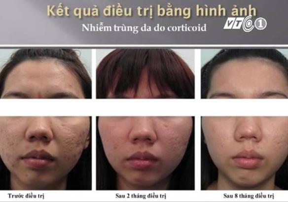 phuc-hoi-da-nhiem-doc-corticoid-nhu-the-nao