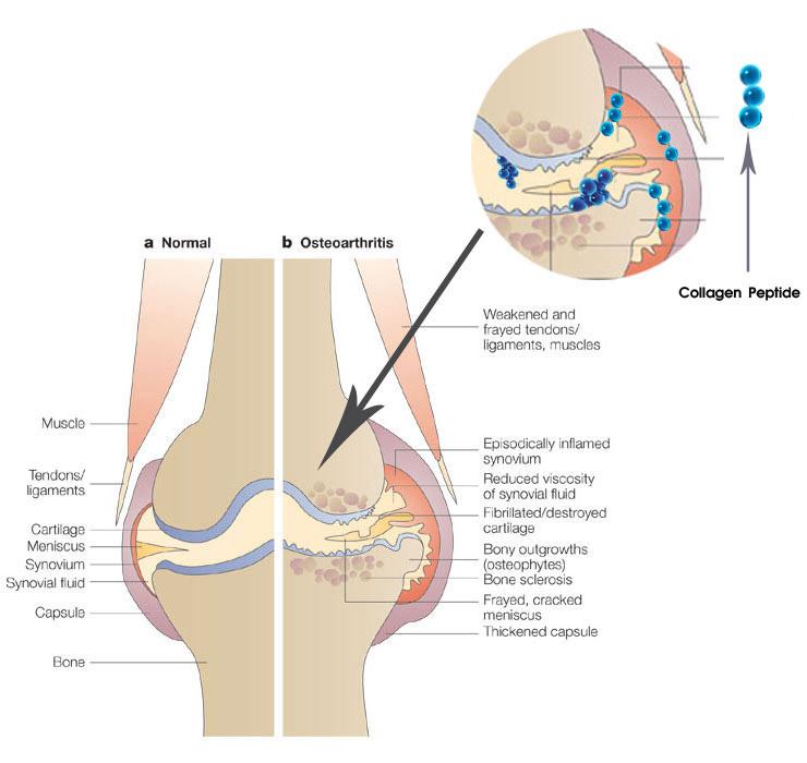 collagen-la-gi-vi-sao-phai-bo-sung-deu-dan-collagen