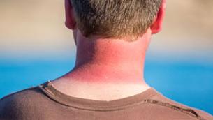 Phải làm thế nào khi da bị cháy nắng?