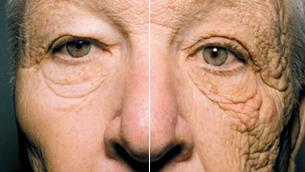Những ảnh hưởng thật sự của ánh nắng mặt trời lên da