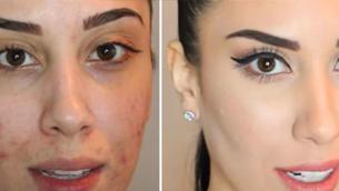 Cách chọn mỹ phẩm trang điểm cho da mụn