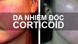 Đáng sợ triệu chứng viêm da do nghiện mỹ phẩm chứa Corticoid