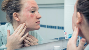 Có nên trị mụn với Benzoyl Peroxide?