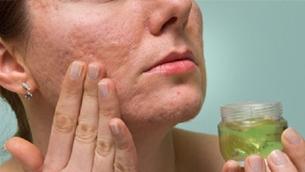 Ngăn ngừa và cải thiện làn da với sẹo mụn