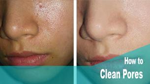 Làm thế nào để làm thông thoáng lỗ chân lông vùng mũi