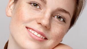 Tàn nhang trên da có thể điều trị hay không?