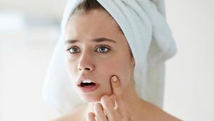 Những bí quyết giúp cải thiện mụn ẩn dưới da
