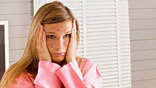 Vì sao mụn vẫn xuất hiện ở nữ giới sau độ tuổi teens?