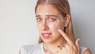 Những bước dưỡng da cơ bản để ngừa mụn xuất hiện