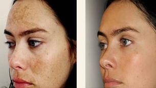 5 bước chăm sóc và điều trị da sạm nám bỏ túi cho phái nữ