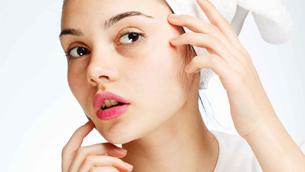Hỏi đáp về mụn và chăm sóc da mụn cần biết