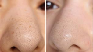 Cách cải thiện mụn đầu đen ở mũi
