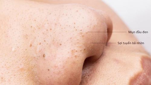 Sự khác biệt giữa sợi bã nhờn và mụn đầu đen