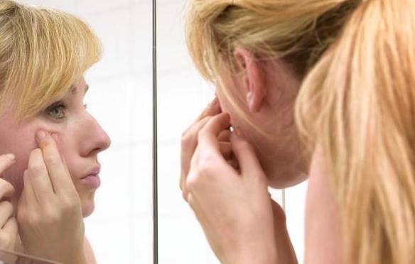 3 bước chăm sóc giúp kiểm soát mụn trên da hiệu quả