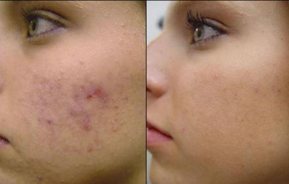 Làm thế nào để mờ vết thâm để lại trên da?