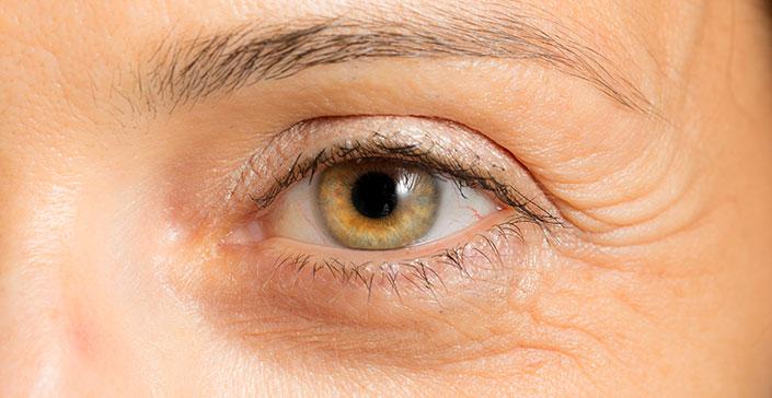 Làm thế nào để hạn chế vết chân chim vùng đuôi mắt?