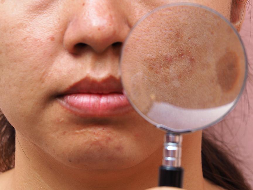 5 tips nhỏ cực kỳ hiệu nghiệm khi điều trị sạm nám da
