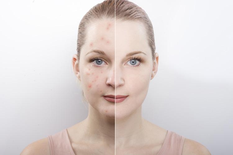 Các liệu pháp hormone có giúp ngăn ngừa mụn phát triển không?