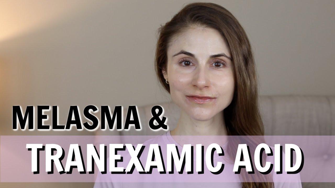 Đặc trị nám thành công với loạt công thức kết hợp Tranexamic Acid bạn chưa từng biết