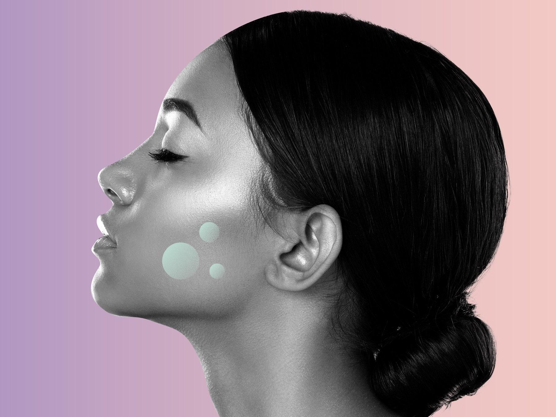 Đặc điểm phân biệt rối loạn tăng sắc tố da mặt