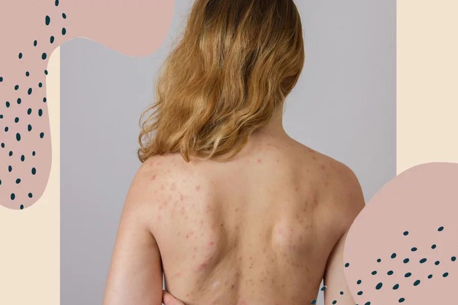 Hè này, trị mụn lưng như thế nào để kịp khoe lưng trần mịn màng?